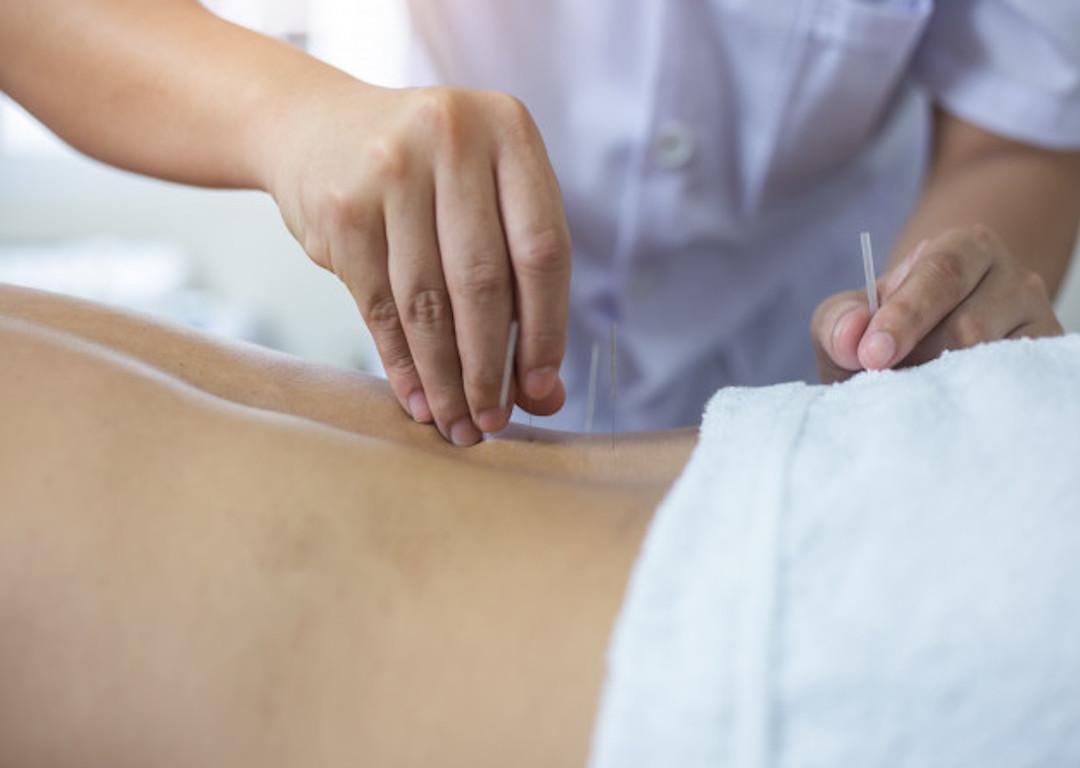 tratamiento acupuntura